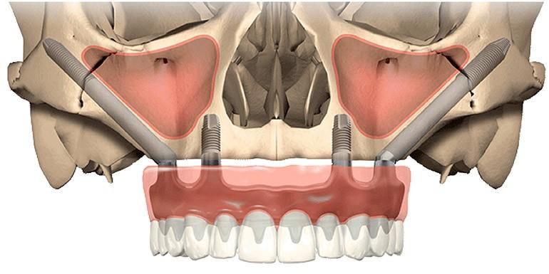 Principios Básicos en Implantes Zigomáticos