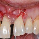 Apollonia Chirurgia parodontale rigenerativa 5