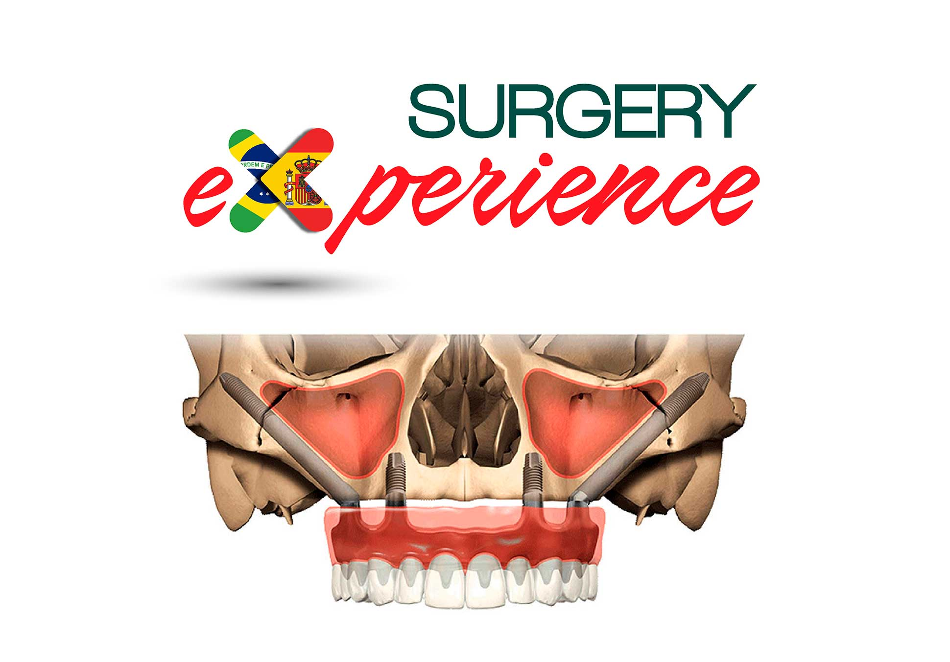 surgery experience zygoma dental innovation cursos cirugia