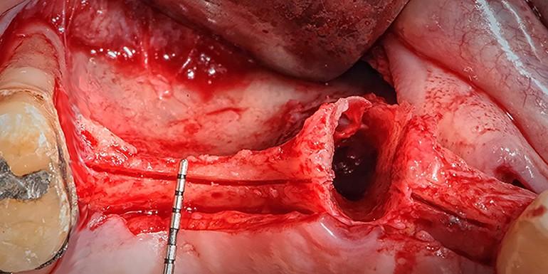 Especialización en Cirugía Oral Avanzada e Implantología