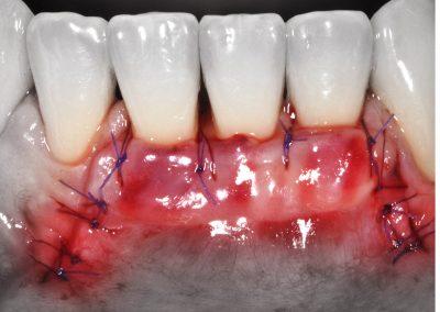 Curso clínico en Periodoncia y Cirugía Plástica Periodontal con pacientes