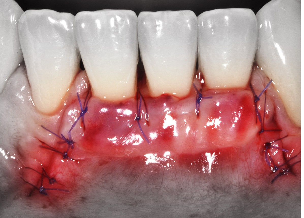 Cirugia Oral Avanzada, Especialización Clínica Cirugía con Pacientes