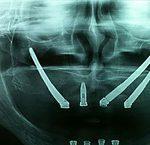 curso Implantes Cigomaticos