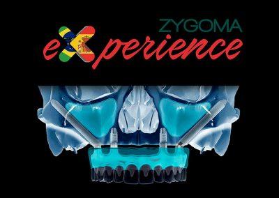 Zygoma Experience – Residencia Clínica de Implantes Zigomáticos