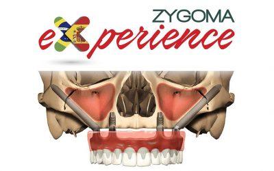 Zygoma Experience