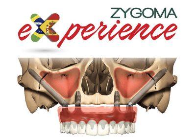 Residencia Clínica en Implantes Cigomáticos en Brasil – Zygoma Experience