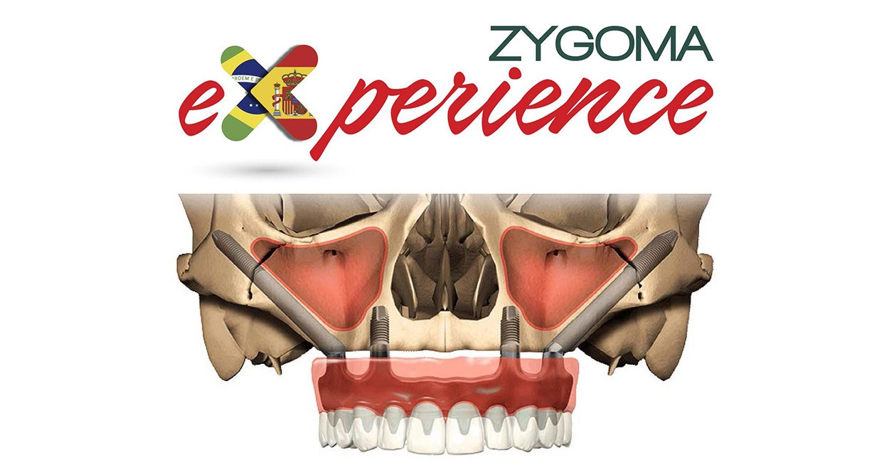 curso implantes cigomaticos zygoma experience