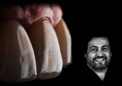 Curso Universitario en Implantología Estética Avanzada – Dr. Darcio Fonseca