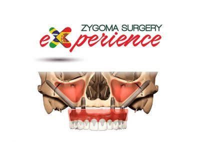 Zygoma Surgery Experience – Curso Clínico de Implantes Zigomáticos