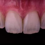 curso clinico periodoncia y cirugia plastica periodontal dental innovation brasil