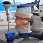 protesis sobre implantes curso clinico dental innovation
